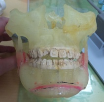 Mandibular cast model.jpg